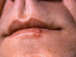 Lippenherpes ist unangenehm. Mit einigen Verhaltenshinweisen kann vorgebeugt ...
