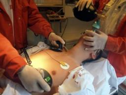 Durch manche Medikamente können Anomalien der Herzfrequenz auftreten